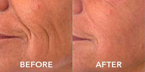1 week post filler treatment