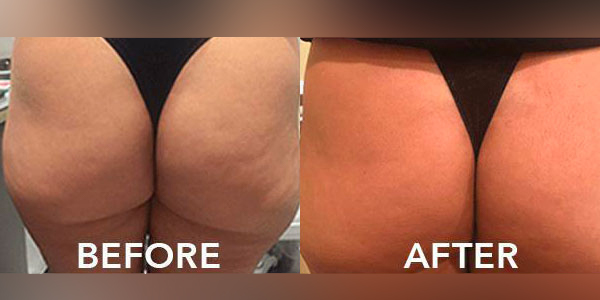 2 months post non-surgical butt lift fillers