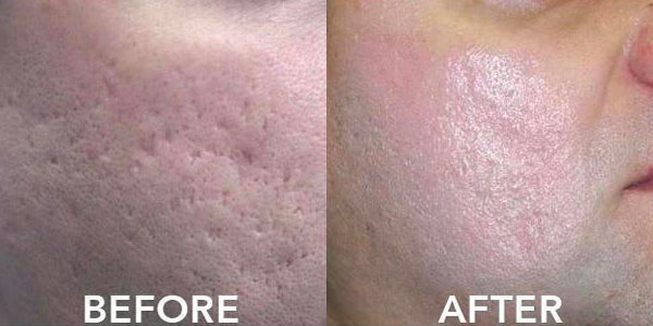 6 months laser and PRP combination treatment
