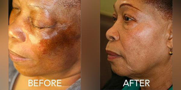 Dr. Anita Peel Hyperpigmentation